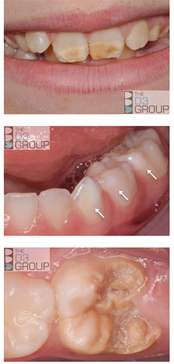 D3 Group Developmental Dental Defects What Is Molar Hypomin